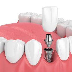 Hill Top Family Dental Implant Dentistry